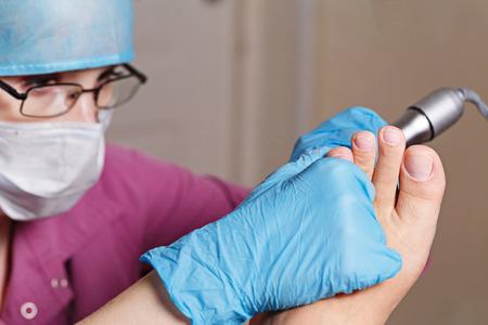 chiropodist: Master chiropody removes calluses and corns. Hardware manicure. Concept body care.