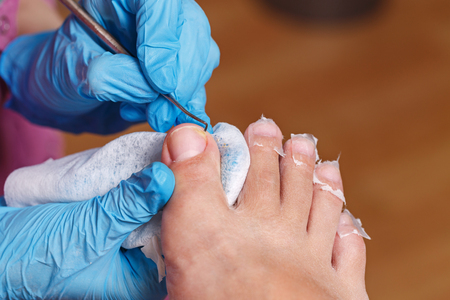 chiropody: Master chiropody cleans fingernails.