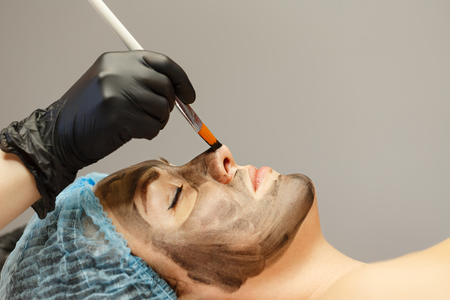 cosmetologist는 고객의 얼굴 피부에 탄소 나노 젤을 적용합니다. 피부의 레이저 치료를위한 준비. 카본 페이스 필링.