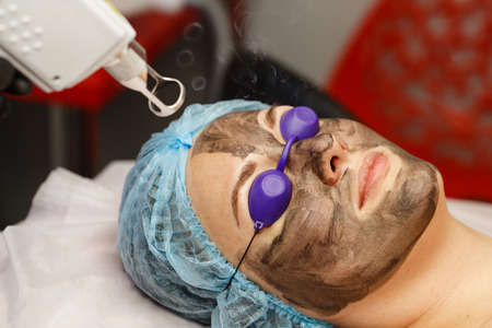 Carbon face peeling. Laser pulses clean the skin of the face. Hardware cosmetology. The process of photothermolysis, warming the skin. Facial skin rejuvenation.