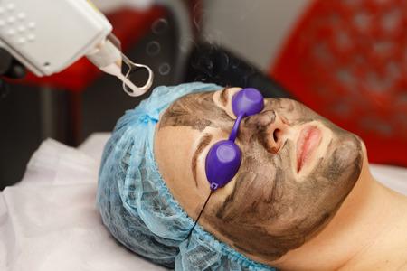 Peeling de cara de carbono. Los pulsos láser limpian la piel de la cara. Cosmetología de hardware. El proceso de fototermolisis, calentando la piel. Rejuvenecimiento facial de la piel. Foto de archivo - 74296032