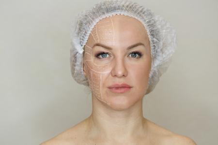 Non-surgical face lifting. SMAS lifting ultrasonic. Facelift. The process of rejuvenation. Spa treatment. Hardware cosmetology. Foto de archivo