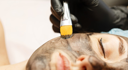 The cosmetologist applies the carbon nanogel to the skin of the client's face. Preparation for laser treatment of the skin. Carbon face peeling. Banco de Imagens - 74442114