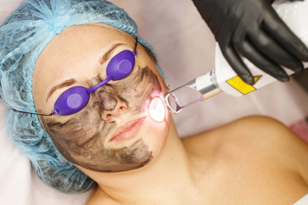 Peeling de cara de carbono. Los pulsos láser limpian la piel de la cara. Cosmetología de hardware. El proceso de fototermolisis, calentando la piel. Rejuvenecimiento facial de la piel. Foto de archivo - 74637354