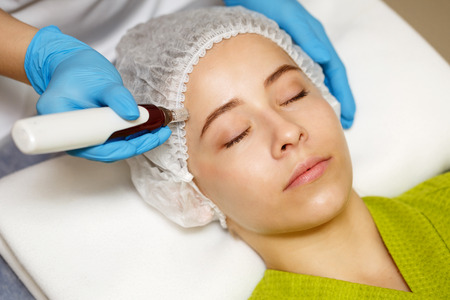 Hardware cosmetology. Mesotherapy. Dermapen. Treatment of forehead zone. Spa treatments. Face rejuvenation. Stock Photo