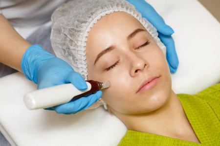 Cosmetologia hardware. Mesoterapia. Dermapen. Trattamento della zona della guancia. Trattamenti Spa. Ringiovanimento del viso. Archivio Fotografico - 81015851