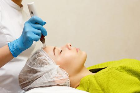 Cosmetología de hardware. Mesoterapia. Dermapen. Procesamiento de la zona de la frente. Tratamientos de spa. Rejuvenecimiento facial. Foto de archivo - 81119047