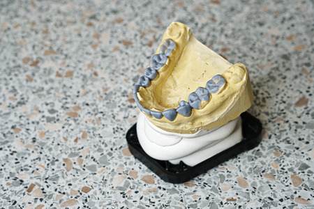 Dental impressions of teeth for manufacture of prostheses and correcting bite. Lower jaw