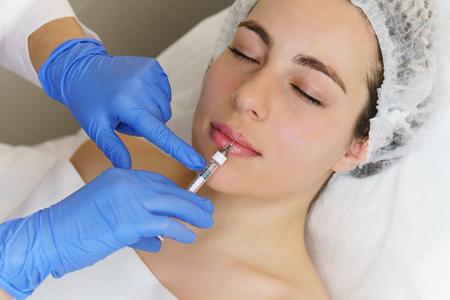 Cosmetologia estetica. Le mani di un cosmetologo iniettano acido ialuronico nel labbro superiore della ragazza. Aumento delle labbra nel salone della spa