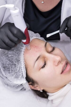 Cosmetologist making mesotherapy injection. Microneedle mesotherapy. Treatment woman at beautician. Hardware cosmetology. Mesotherapy, dermapen, treatment of face zone, face rejuvenation. Standard-Bild