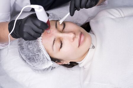 Cosmetologist making mesotherapy injection. Microneedle mesotherapy. Treatment woman at beautician. Hardware cosmetology. Mesotherapy, dermapen, treatment of face zone, face rejuvenation.