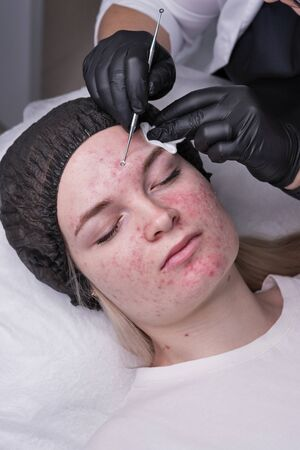 Beautician make procedure for cleaning skin with steel tool from blackheads and acne in cosmetology center. Acne treatment. Cosmetology and professional skin care.