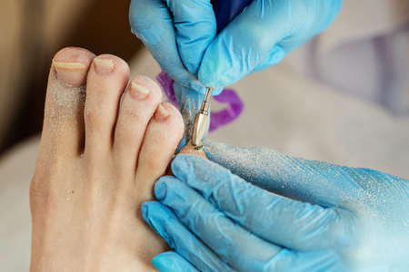 Professional making pedicure removing old coating in salon. Master chiropody shapes the nails. Female patient in the process of hardware pedicure procedure. Concept body care. Close up.