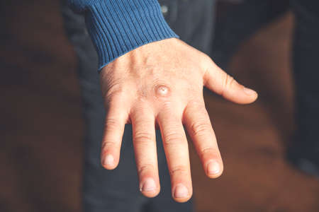 Man with sick hands, dry flaky skin on his hand with vulgar psoriasis, eczema and other skin diseases such as fungus 免版税图像