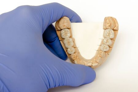 ceramic-metal bridges on a plaster model in the hands of a dentist. ceramic crowns, bridges, implants