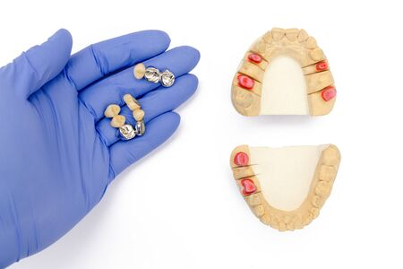 dental prosthetics background. fake teeth concept. crowns and bridges are in the dentist's hand. gypsum models of the upper and lower jaws