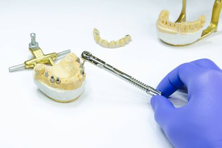 the dentist unscrews the implant using a key. implant prosthetics. production of crowns on implants. dental implantation