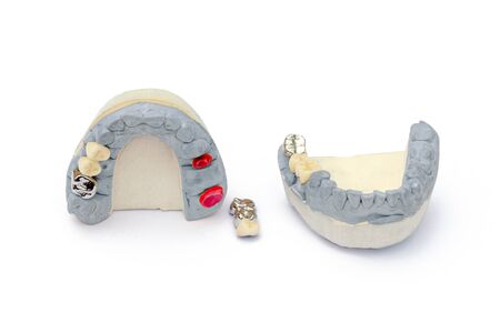 metal and ceramic artificial teeth. concept of replacing missing teeth. dental prosthetics. isolated