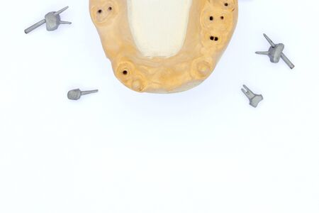 dental metal pins. cast pins with a plaster model of the jaw isolated on a white background. background for the dental laboratory. concept of orthopedic dentistry
