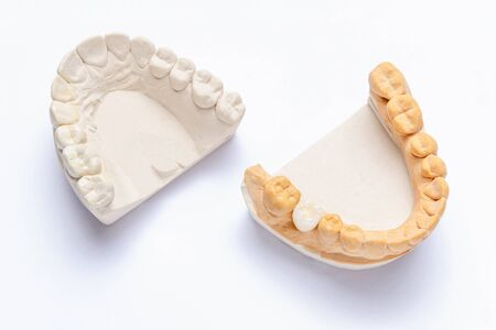 on a white background are plaster models of the jaws with a ceramic crown made on a molar. white artificial tooth on the implant. concept of orthopedic dentistry 免版税图像