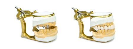 jaw models with dental implants and orthopedic implant construction. implant prosthetics concept. orthopedic dentistry. isolated on a white background. before and after prosthetics with ceramic crowns