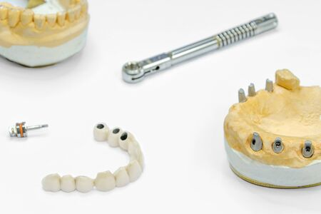 the process of manufacturing ceramic teeth on implants. dental implants with ceramic teeth on a light background. concept of dental implantation and dental prosthetics on implants.