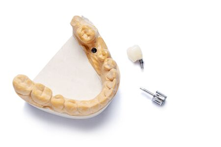 model of the lower jaw with a dental implant and a ceramic crown with fixation on the implant. screwdriver for screwing the crown to the implant. concept of prosthetics on dental implants. modern dentistry