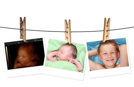sonar: Immagine del neonato come ecografia 3D e la stessa bambina di 7 giorni e 10 anni Archivio Fotografico
