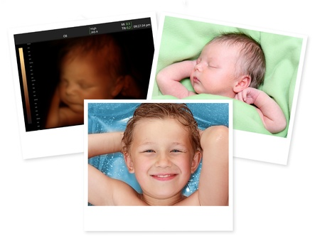 Image of newborn baby like 3D ultrasound and same baby 7 days old and 10 years old  photo
