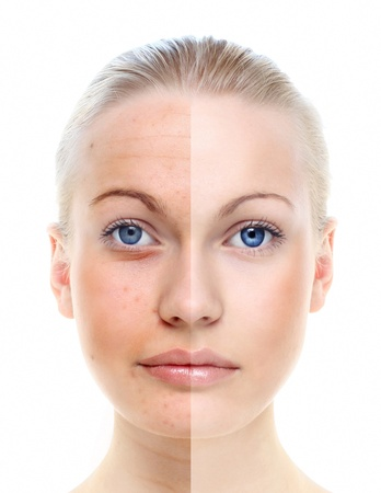 contrast: Beautiful woman s portrait isolated on white, before and after retouch, skin care  Stock Photo
