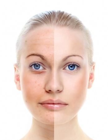 Sch�ne Frau s Portr�t isoliert auf wei� vor und nach Retusche, Hautpflege