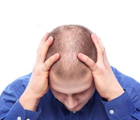 calvicie: Hombre joven con el pelo raro deprimido.