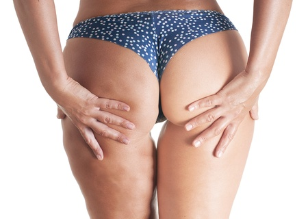 Woman body, half with cellulite Stock Photo - 20076405