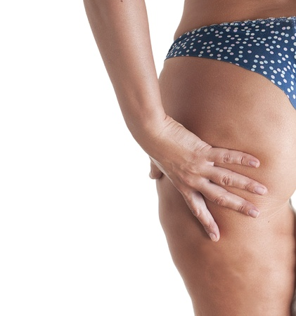 Woman body with cellulite  Stock Photo - 20076192
