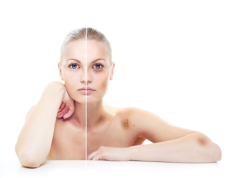 Beautiful womans portrait isolated on white, before and after abuse, half with bruises on her body. Stock Photo