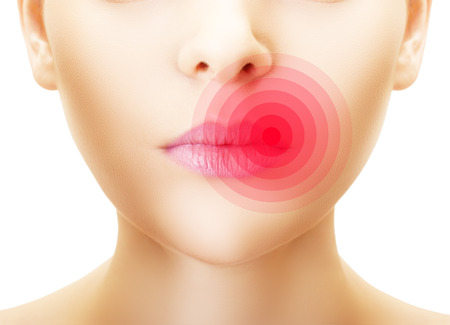 simplex: Lips affected by herpes, shown red.