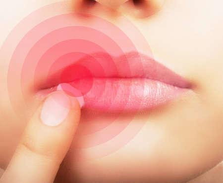 dermatologo: Donna applicare la crema sulle labbra affette da herpes, visualizzate in rosso.