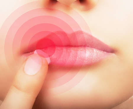 cold: Woman  applying cream on lips affected by herpes, shown red.