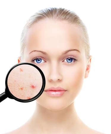 piel: Retrato de la mujer hermosa aislado en blanco, antes y despu�s del retoque, tratamiento de belleza, el concepto de cuidado de la piel.