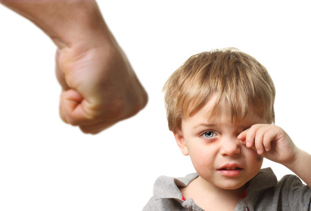 bruise: Child with bruise wiping tears isolated on white background. Domestic and family violence concept.