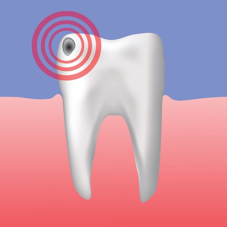 carious: colorful illustration with hole in the tooth for your design