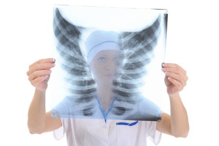 Doctor holding an x-ray photo