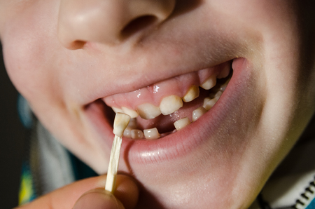 little boy with a fallen tooth. Child opening his mouth.