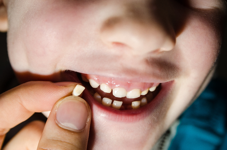Child opening his mouth with a fallen tooth. Boy smilling in dentistry concept. Reklamní fotografie