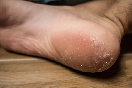 Feet with dry skin needing treatment. heel pain and disease Imagens - 134195329