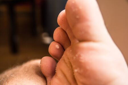 toes on male foot with dry skin needing treatment. heel pain and disease