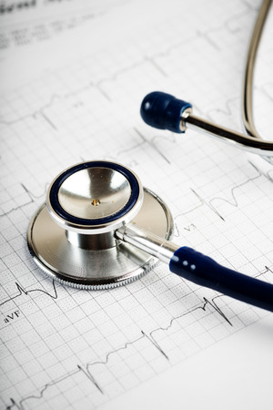 equipos medicos: Estetoscopio en concepto cardiograma para el cuidado del coraz�n Foto de archivo