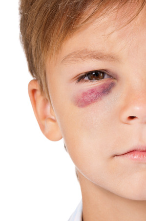 attacked: Portrait of boy with bruise, isolated on white background Stock Photo