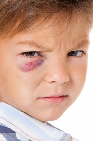 Portrait of boy with real eye bruise, isolated on white background