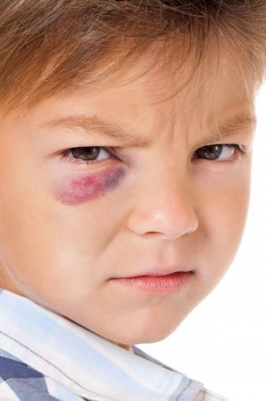 Ritratto di ragazzo con reale livido occhio, isolato su sfondo bianco